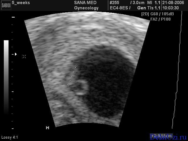 Можно ли увидеть на узи беременность 1 неделя
