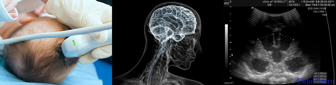 УЗИ головного мозга ребенка