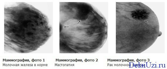 Ультразвуковая маммография