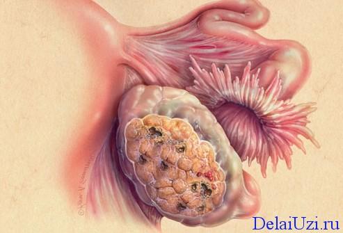 Раковая опухоль яичников