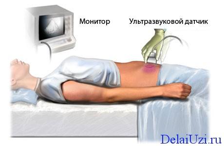 Процедура УЗИ органов малого таза у женщин