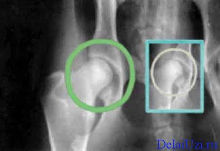 Расшифровка узи тазобедренного сустава 3 месяца физическая реабилитация после эндопротезирования плечевого сустава