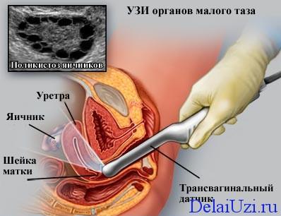 Методика УЗИ малого таза