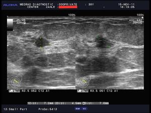 фиброаденома молочной железы фото узи