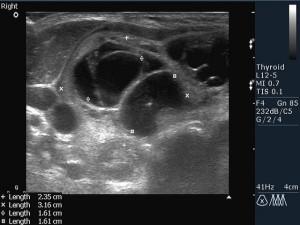 киста щитовидной железы фото узи