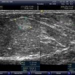 Фото липомы молочной железы на УЗИ