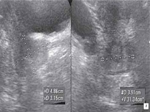 рак шейки матки узи фото