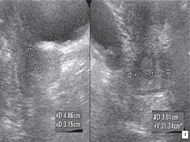 рак матки на узи фото № 65501 бесплатно