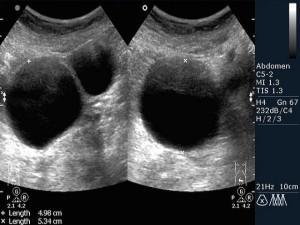 дермоидная киста яичника фото узидермоидная киста яичника фото узи