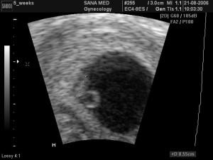 беременность 2 недели фото узи