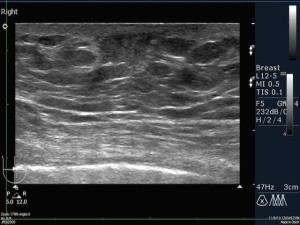 липома молочной железы фото узи