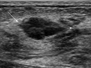 рак молочной железы фото узи
