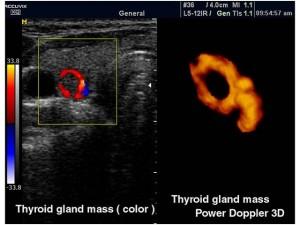 узи щитовидной железы фото